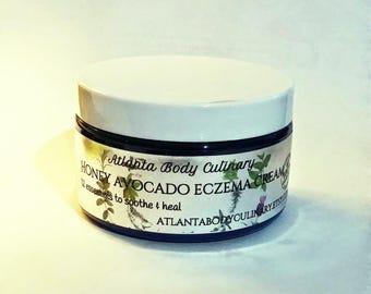 8 oz Avocado honey eczema cream organic eczema cream vegan eczema cream eczema organic eczema cure