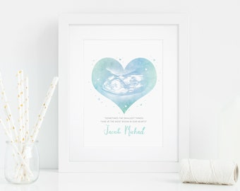 Ultrasound Watercolour Art Digital Download - Sonogram Print - Pregnancy Gift - Art Print - Baby Shower Gifts - Pregnancy Announcement
