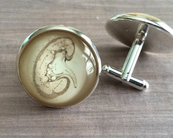 VINTAGE ANATOMY KIDNEY Cufflinks / The Kidney Cuff Links  / Renal System / Gift for Him / Gift For G.U. Doctor nephrologist /  gift boxed