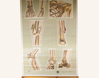 Vintage St Johns Fracture Wall Chart