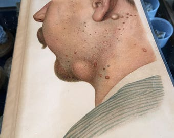 Lithograph antique late 1800s skin condition 19 x 12.5 cm