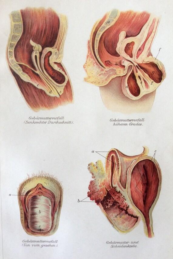 Tolle Gebärmutter Anatomie Diagramm Bilder - Menschliche Anatomie ...