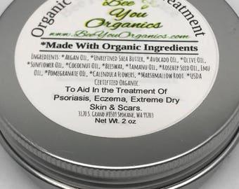 Organic Skin Care   Sunburn Relief   Natural Skin Care   For Burns & Cuts   Scars   Severe Dry Skin   Tattoo Balm