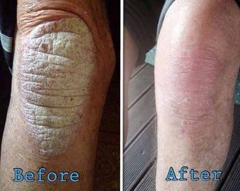 Eczema-Psoriasis-Dermatitis-All Purpose Natural Balm-BEST SELLER