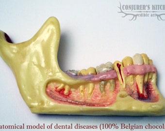 Chocolate Dental Disease