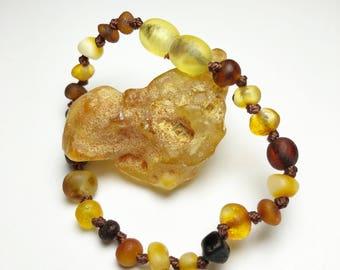 No Rhyme or Reason, Raw Baltic Amber Teething Anklet/Bracelet