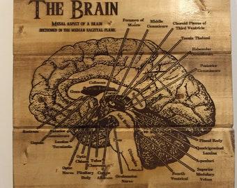 Anatomy of the Brain Sign