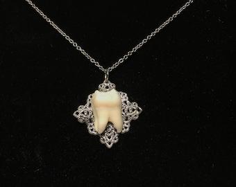 Genuine Human Molar Necklace