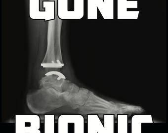 Ankle Replacement - Gone Bionic Afinity