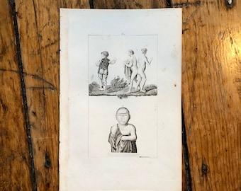 1830 PHYSICAL DEFORMITIES & medical abnormalities print - very rare original antique anatomy engraving - cyclops, siamese twins, piebald