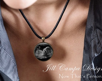 SONOGRAM Necklace, Your baby's sonogram on a necklace - Ultrasound Pendant - Sonogram necklace,  leather cord necklace