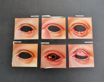 1968 Surreal Eye Overlay Medical training Identification Charts