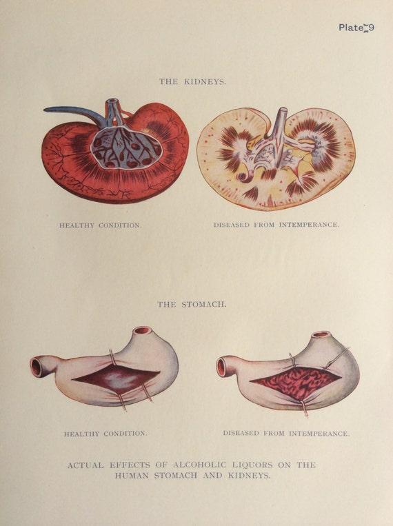 Vintage 1920s Print Human Anatomy Illustration Kidneys Stomach