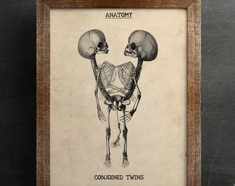 Human Anatomy Print, Antique Print, Conjoined Twins, Steampunk Print, 8,5x11 wall art, cabinet of curiosities