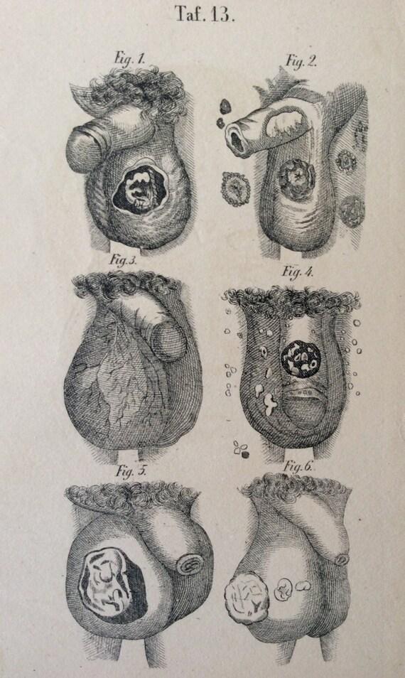 Antik Gravur Anatomie PENIS Hoden Krankheit Hodensack