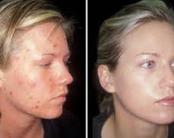 Organic Acne Wash facial cleancer moisturizing  Soap, facial, glycerin, tea tree