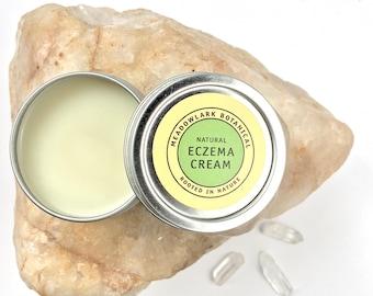 Natural Baby Eczema Cream | Travel Size Eczema & Dermatitis Relief | Organic Healing Salve | Vegan
