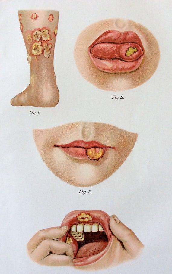 Vintage 1907 anatomía médica alemana diagrama Bookplate