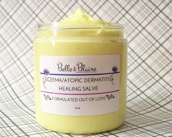 Eczema/Atopic Dermatitis Healing Salve- Psoriasis & Eczema Formula- Natural Relief Calming Balm/Cream