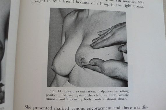 Gynecology fetish pictures