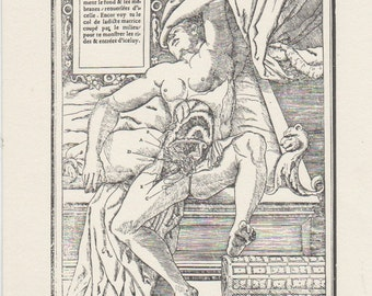 """Medical Print , ready to frame , Charles Estienne """" De dissectione""""1546"""
