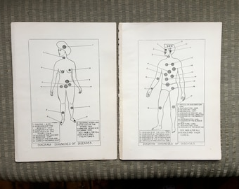 c.1901 DIAGNOSIS OF DISEASES - original antique prints - male and female human anatomy medical prints - set of 2 lithographs