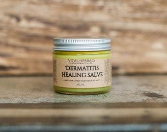 Dermatitis salve - eczema salve - eczema cream - psoriasis - skin care - skin care products