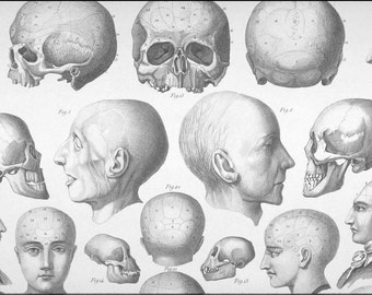 Anatomical art, Skull bone, Human skull print, Vintage anatomy, #201