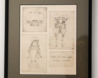 Original Conjoined Twins Skeleton Etching Art