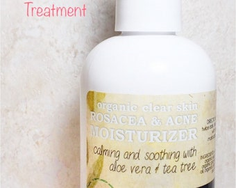 Clear Skin Rosacea & Acne Treatment with Aloe Vera and Tea Tree. Moisturizing, organic