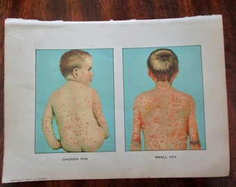 1900s original page, not a copy - 1912 color MEDICAL CHART from antique medical book - small pox, chicken pox