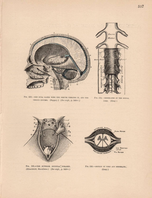 Famoso Dura Anatomía Mater Inspiración - Anatomía de Las Imágenesdel ...
