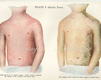 1911  SCARLET FEVER plate 1 Human Anatomy Print, bookplate chart