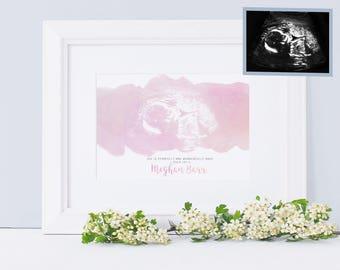 Miscarriage Gift - Miscarriage memorial Keepsake - Watercolour Ultrasound Art - Baby Angel Memorial - Baby Loss Gift - Miscarriage Memory