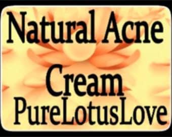 Acne Cream; Organic