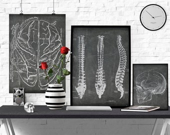 Spine Printable,Radiology orChiropractor Office Art, Anatomical Spine Print Vintage Medical Illustration,Instant download,Chalkboard Anatomy