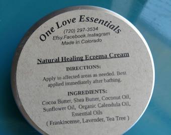 Natural Healing Eczema Cream