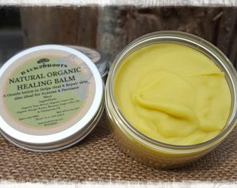 Natural Organic Healing Balm / Eczema / Psoriasis / Baby & adults lotion