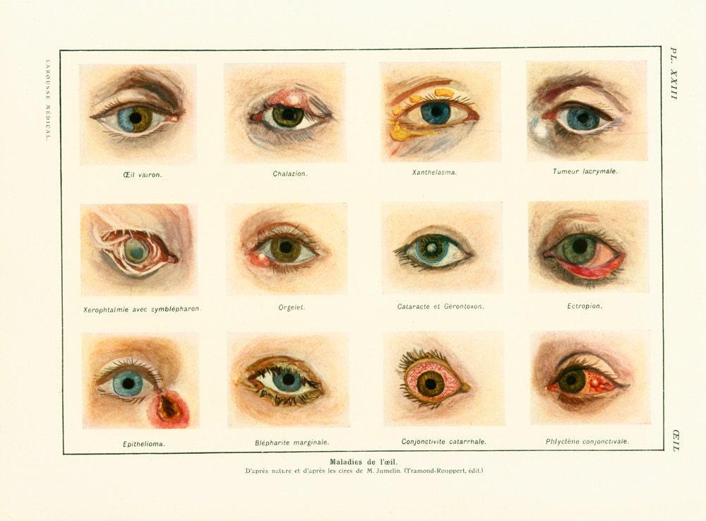 1952 Eye anatomy eye disease wall eyes minnow Medicine &