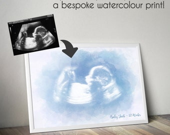 Personalised Watercolour Baby Scan Photo Print - Turn your Ultrasound photo into a bespoke print! - Baby Shower Gift or Miscarriage Memory