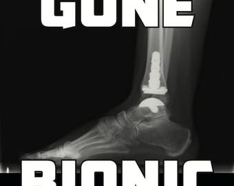 Ankle Replacement - Gone Bionic Inbone