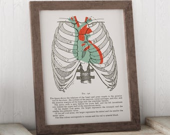 Medical Art - Heart in Chest Anatomy Art Print - Medical Student Gift - Includes description
