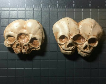 Conjoined Twin Skulls Fetal and Adult Magnets