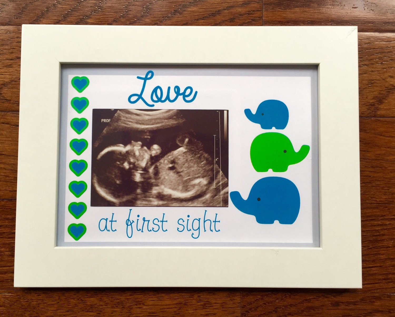 Ultrasound frame baby picture love at first sight sonogram zoom jeuxipadfo Images