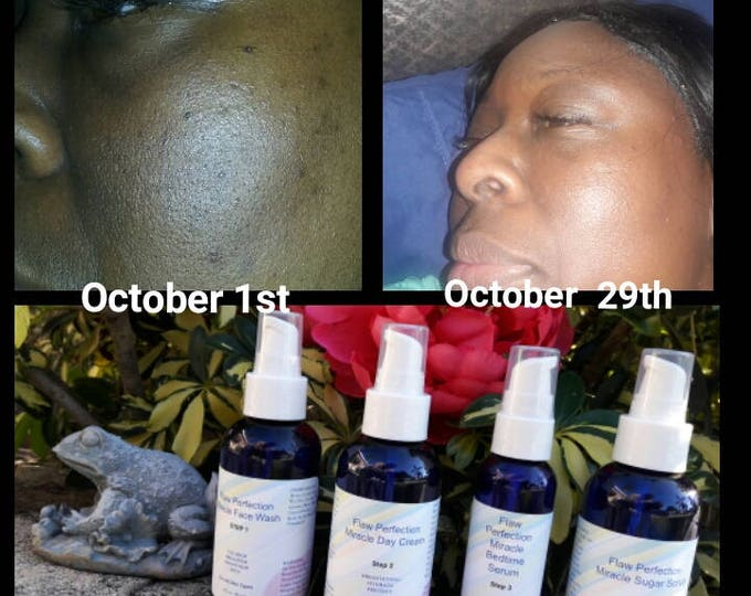 Flaw Perfection Miracle Skin Care System For Dark Spots -Blemishes -Uneven Skin Tone-Imperfections