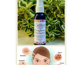 Aromatherapy Acne Serum