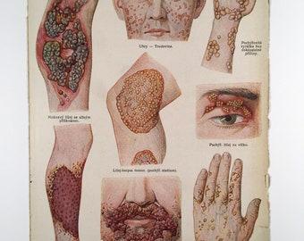 HORRIBLE SKIN PROBLEMS - Vintage Czech Medical Illustration 1920s