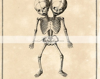 Printable Instant Download - Anatomy Skeleton Conjoined Twins Babies Unusual Creepy Antique Vintage Art - Paper Crafts Scrapbook Altered Art