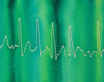 Green A-Fib - original watercolor ekg painting